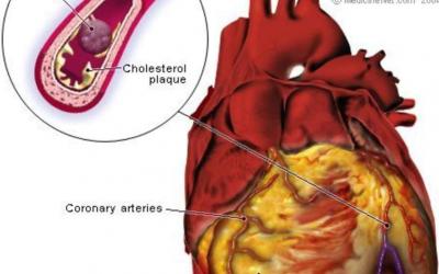 Surviving a heart attack when alone